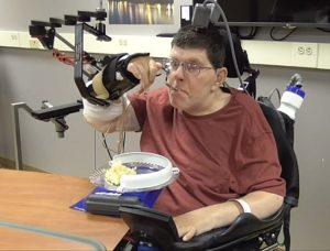 YOUTUBE Un microchip nel cervello e il tetraplegico muove il braccio dopo anni