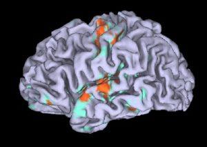 Onestà in un'area cervello: una scossa e aumenta. Scientifica illusione