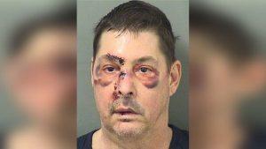 Uomo in auto, nudo e con cavi elettrici ai genitali, molestava passanti