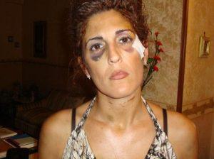 """Lidia Vivoli, scampata al femminicidio: """"Lui sta per tornare libero. E vuole ammazzarmi"""""""