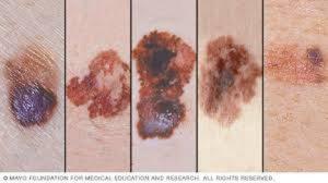 Melanoma, come riconoscerlo. Il sistema A, B, C, D, E, F, G