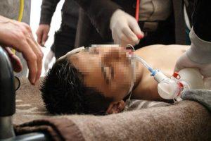 """Siria, bambini sotto choc permanente: """"Sognano di morire per non vedere più la guerra"""""""