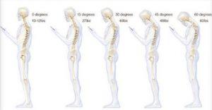 Dolori al collo e mal di schiena? Piegare la testa sul cellulare aumenta lo stress sulla spina dorsale