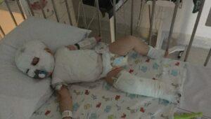 Hunter Hall, bimbo di 17 mesi, si rovescia il bollitore dell'acqua addosso: ora non riesce più a muoversi