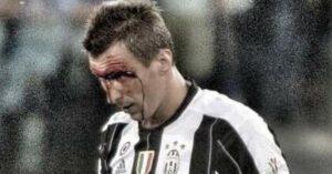 Juventus-Lazio, Mandzukic sanguinante durante finale Coppa Italia