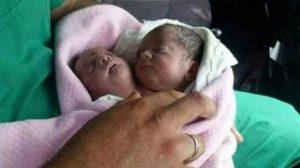 Bimbo con due teste nato a Idlib in Siria. La città fu oggetto di attacchi chimici. FOTO