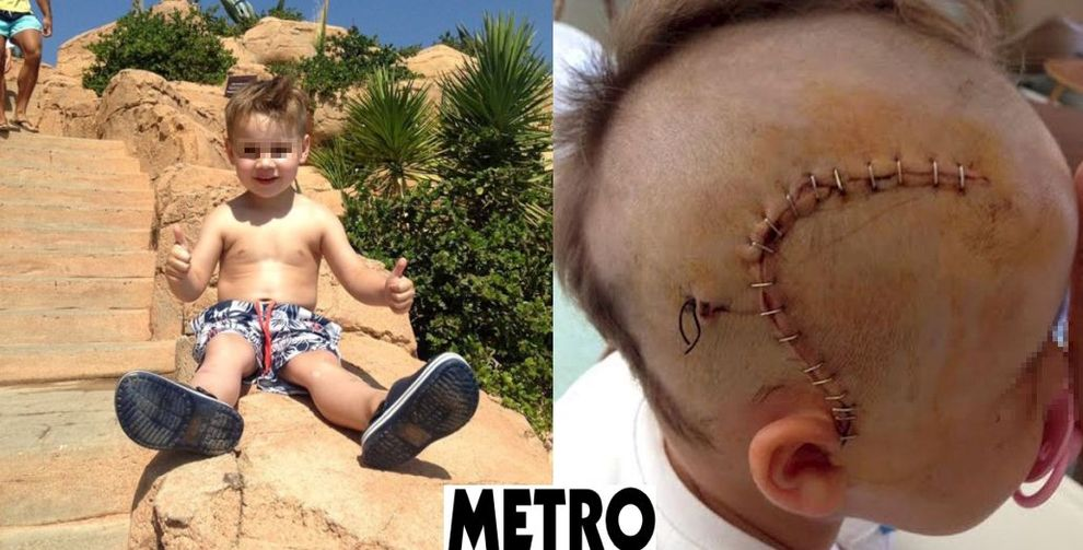 Altoparlante si sgancia e piomba sul lettino: bimbo di 3 anni resta schiacciato
