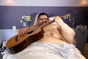 Juan Franco Pedro, uomo più grasso del mondo si opera: gli hanno messo un bypass gastrico
