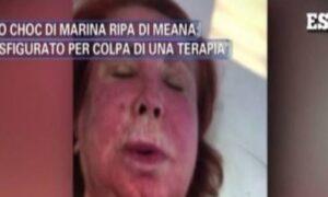 """Pomeriggio 5, Marina Ripa di Meana sfigurata: """"Ho il volto sfregiato a causa di una terapia anti-cancro"""""""