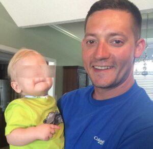 Eli Thompson, morto a 2 anni il bimbo nato senza naso